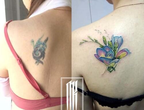Исправление плохой татуировки